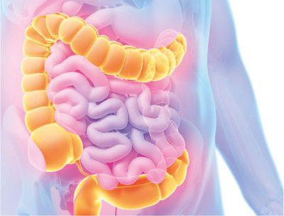 colorectal cancer innovation switzerland