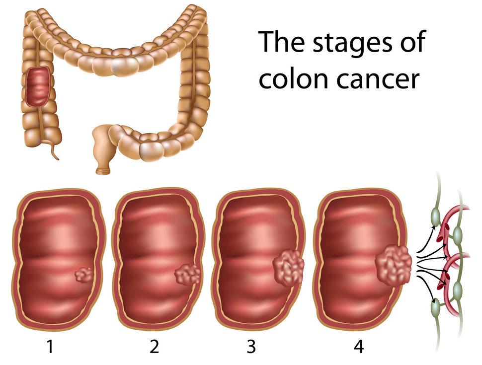 Qu'est-ce que le cancer du côlon ? - Novigenix
